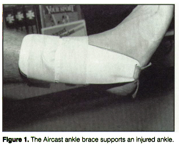 Figure 1. The Aircast ankle brace supports an injured ankle.
