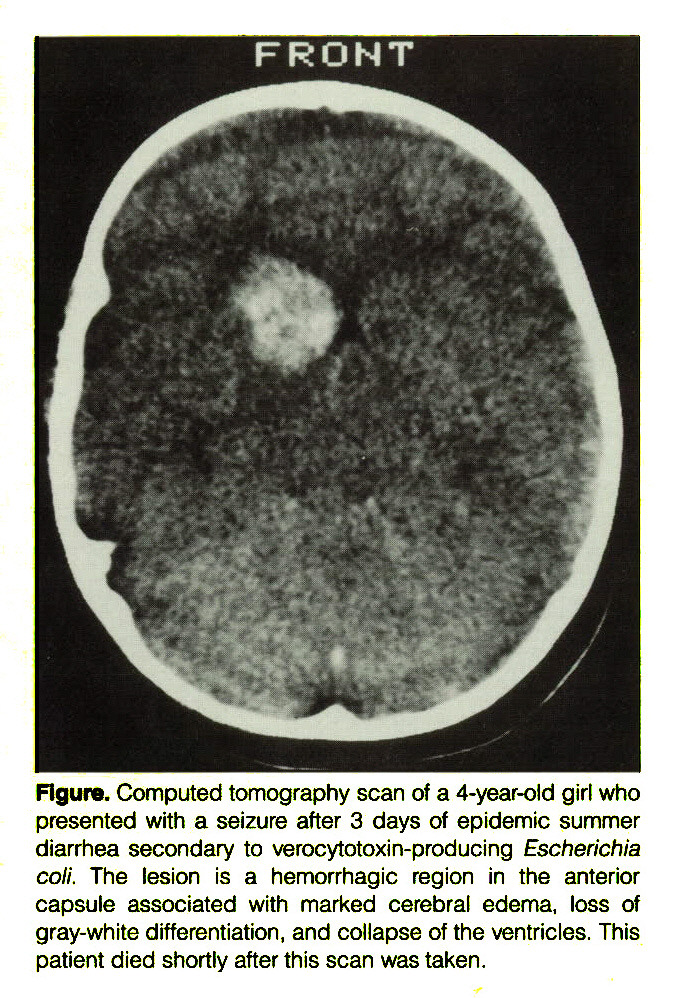 Figure. Computed tomography scan of a 4-year-old girl who presented with a seizure after 3 days of epidemic summer diarrhea secondary to verocytotoxin-producing Escherichia coli. The lesion is a hemorrhagic region in the anterior capsule associated with marked cerebral edema, loss of gray-white differentiation, and collapse of the ventricles. This patient died shortly after this scan was taken.