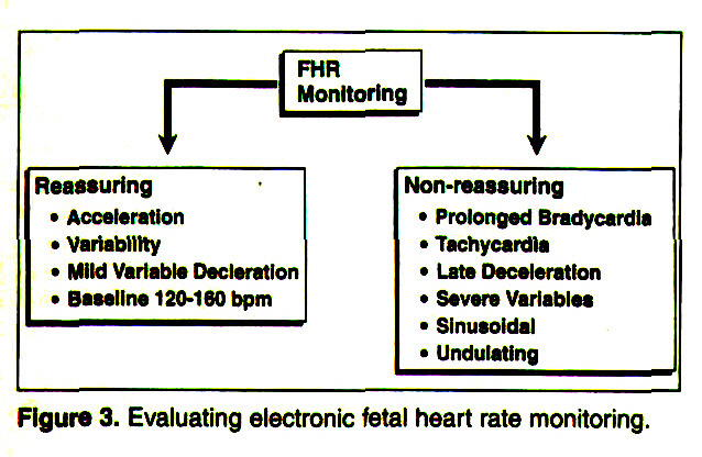 Figure 3. Evaluating electronic fetal heart rate monitoring.
