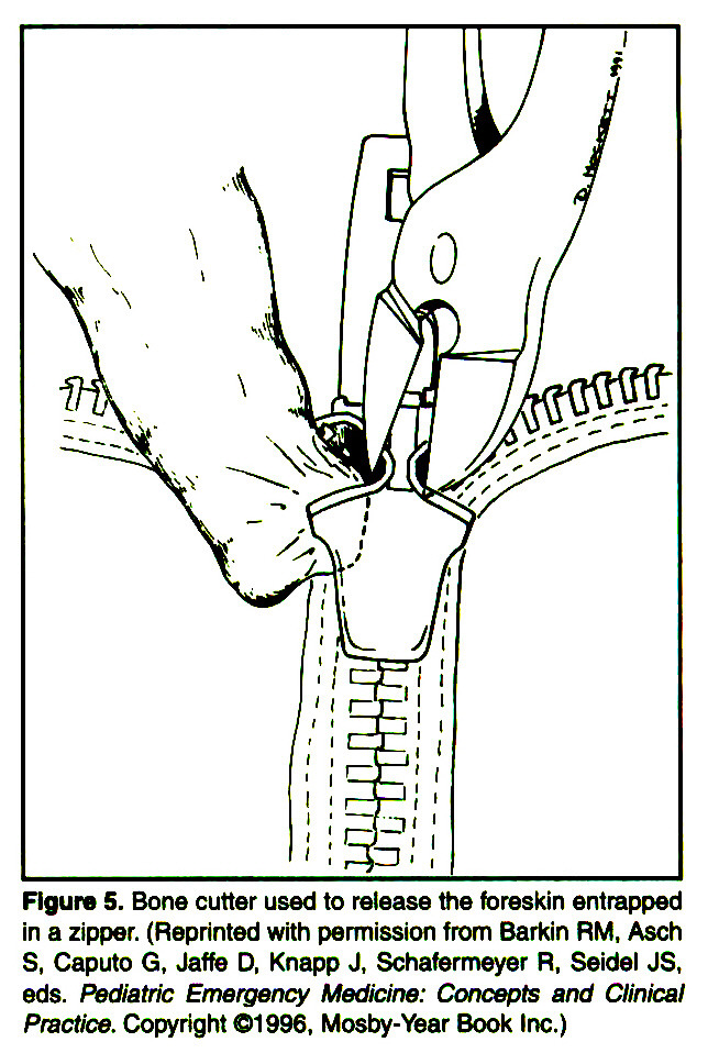 Figure 5. Bone cutter used to release the foreskin entrapped in a zipper. (Reprinted with permission from Barkin RM1 Asch S, Caputo G, Jaffe D, Knapp J, Schafermeyer R1 Seidel JS1 eds. Pediatrie Emergency Medicine: Concepts and Clinical Practice. Copyright ©1996, Mosby-Year Book Inc.)