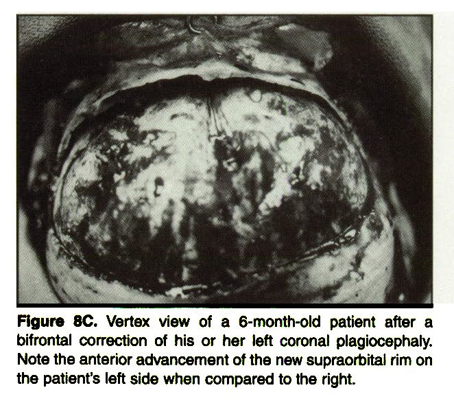 Figure 8C. Vertex view of a 6-month-old patient after a bifrontal correction of his or her left coronal plagiocephaly. Note the anterior advancement of the new supraorbital rim on the patient's left side when compared to the right.