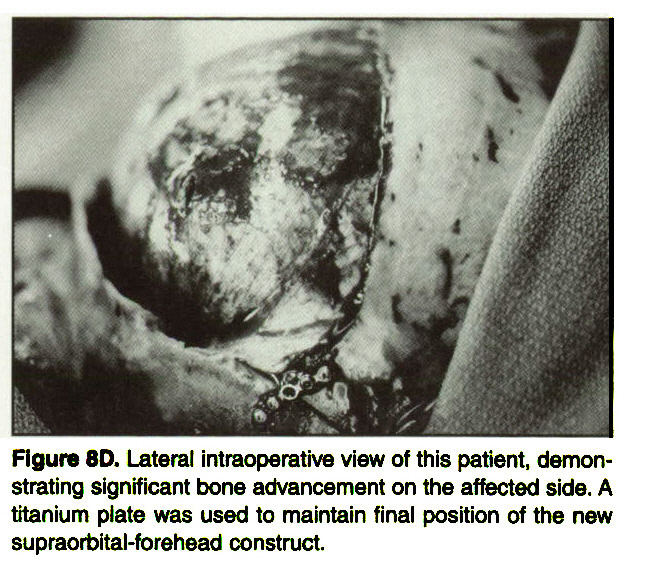 Figure 8D. Lateral intraoperative view of this patient, demonstrating significant bone advancement on the affected side. A titanium plate was used to maintain final position of the new supraorbital-forehead construct.