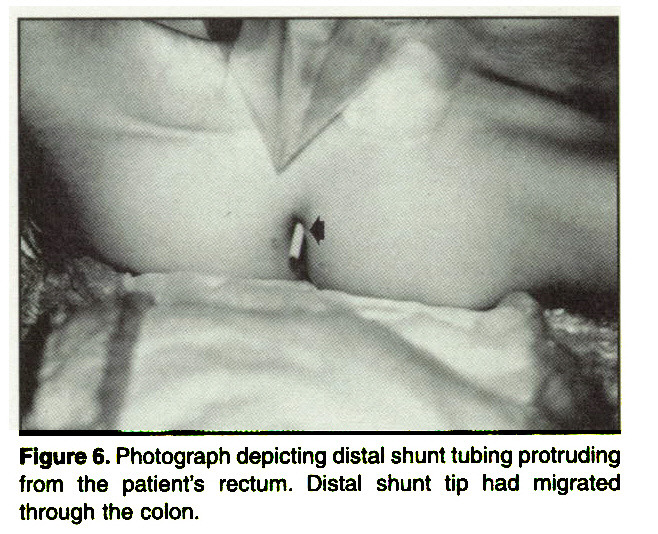 Figure 6. Photograph depicting distal shunt tubing protruding from the patient's rectum. Distal shunt tip had migrated through the colon.