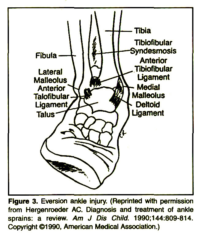 Figure 3. Eversión ankle injury. (Reprinted with permission from Hergenroeder AC. Diagnosis and treatment of ankle sprains: a review. Am J Dis Child. 1990:144:809-814. Copyright ©1990, American Medical Association.)