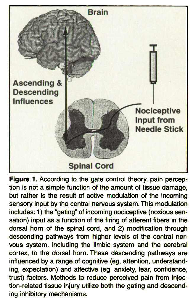 "Figure 1 . According to the gate control theory, pain perception is not a simple function of the amount of tissue damage, but rather is the result of active modulation of the incoming sensory input by the central nervous system. This modulation includes: 1) the ""gating"" of incoming nociceptive (noxious sensation) input as a function of the firing of afferent fibers in the dorsal horn of the spinal cord, and 2) modification through descending pathways from higher levels of the central nervous system, including the limbic system and the cerebral cortex, to the dorsal horn. These descending pathways are influenced by a range of cognitive (eg, attention, understanding, expectation) and affective (eg, anxiety, fear, confidence, trust) factors. Methods to reduce perceived pain from injection-related tissue injury utilize both the gating and descending inhibitory mechanisms."