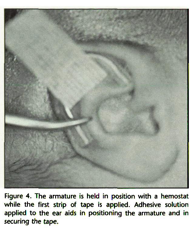 Figure 4. The armature is held in position with a hemostat while the first strip of tape is applied. Adhesive solution applied to the ear aids in positioning the armature and in securing the tape.