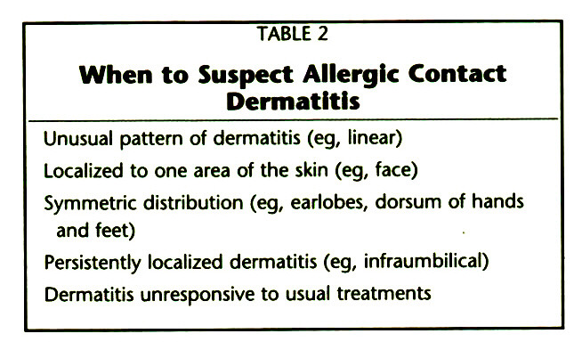 TABLE 2When to Suspect Allergic Contact Dermatitis