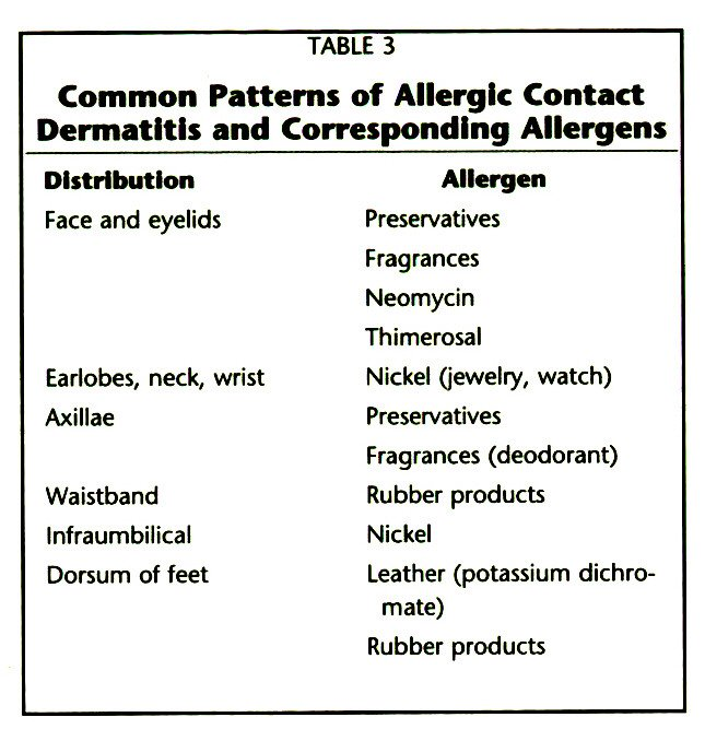TABLE 3Common Patterns of Allergic Contact Dermatitis and Corresponding Allergens
