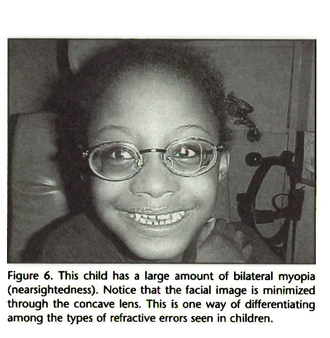 Figure 6. This child has a large amount of bilateral myopia (nearsightedness). Notice that the facial image is minimized through the concave lens. This is one way of differentiating among the types of refractive errors seen in children.