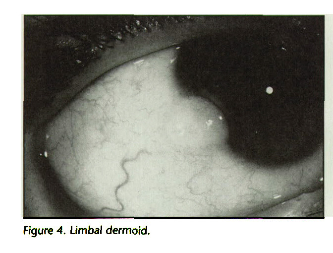 Figure 4. Limbal dermoid.