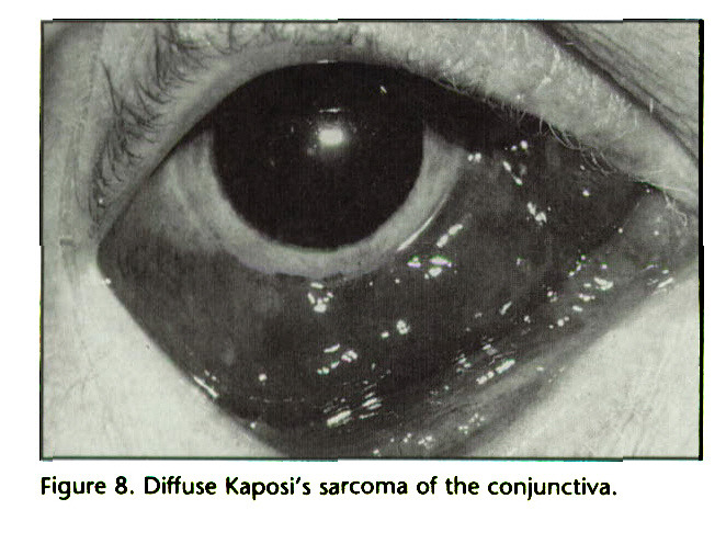 Figure 8. Diffuse Kaposi's sarcoma of the conjunctiva.