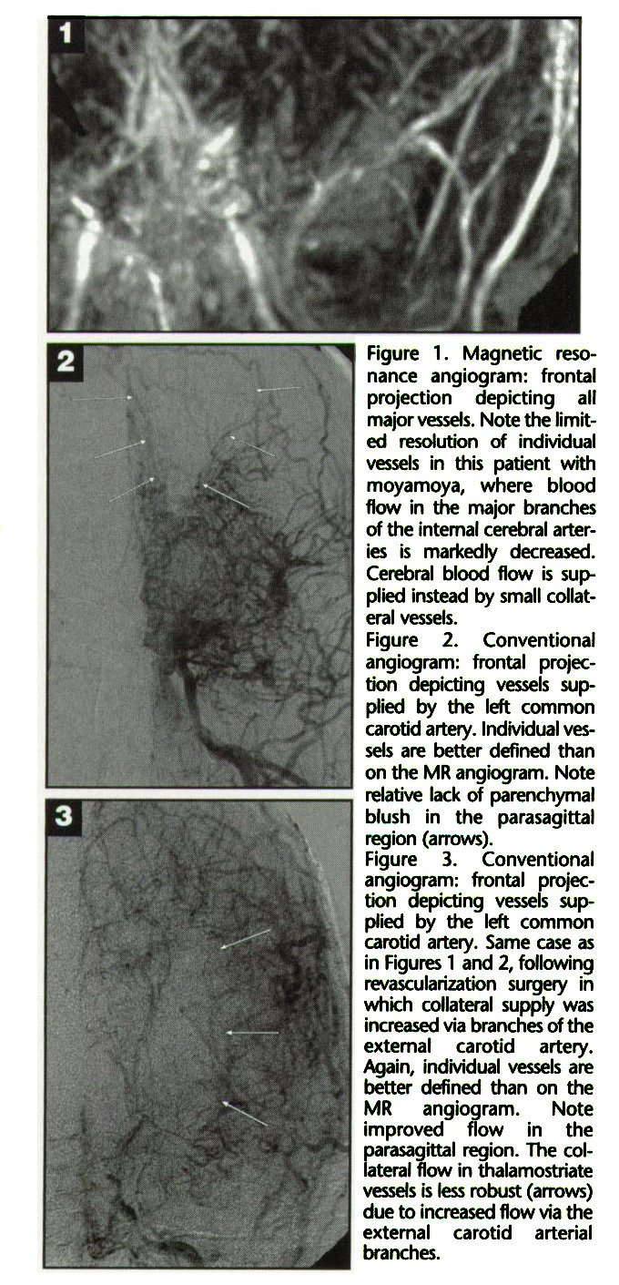 Figure 1. Magnetic resonance angiogram: frontal projection depicting all major vessels. Note the limited resolution of individual vessels in this patient with moyamoya, where blood flow in the major branches of the internal cerebral arteries is markedly decreased. Cerebral blood flow is supplied instead by small collateral vessels.Figure 2. Conventional angiogram: frontal projection depicting vessels supplied by the left common carotid artery. Individual vessels are better defined than on the MR angiogram. Note relative lack of parenchymal blush in the parasagittal region (arrows).Figure 3. Conventional angiogram: frontal projection depicting vessels supplied by the left common carotid artery. Same case as in Figures 1 and 2, following revascularization surgery in which collateral supply was increased via branches of the external carotid artery. Again, indMdual vessels are better defined than on the MR angiogram. Note improved flow in the parasagittal region. The coliateral flow in thalamostriate vessels is less robust (arrows) due to increased flow via the external carotid arterial branches.