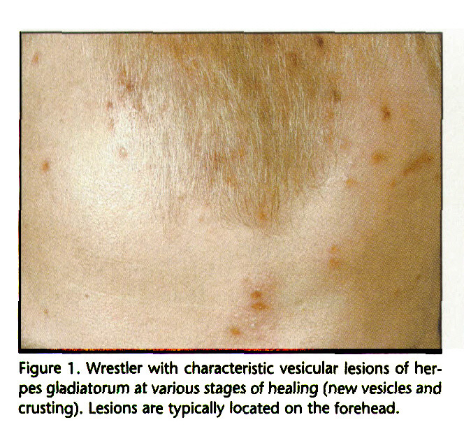 Figure 1. Wrestler with characteristic vesicular lesions of herpes giadiatorum at various stages of healing (new vesicles and crusting). Lesions are typically located on the forehead.