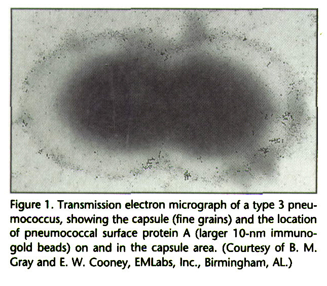 Figure 1 . Transmission electron micrograph of a type 3 pneumococcus, showing the capsule (fine grains) and the location of pneumococcal surface protein A (larger 10-nm immunogold beads) on and in the capsule area. (Courtesy of B. M. Gray and E. W. Cooney, EMLabs, Inc., Birmingham, AL.)