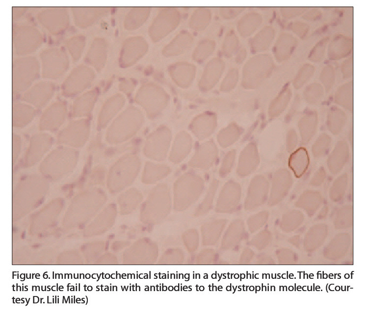 Figure 6. lmmunocytochemical staining in a dystrophic muscle. The fibers of this muscle fail to stain with antibodies to the dystrophin molecule. (Courtesy Dr. Lili Miles)