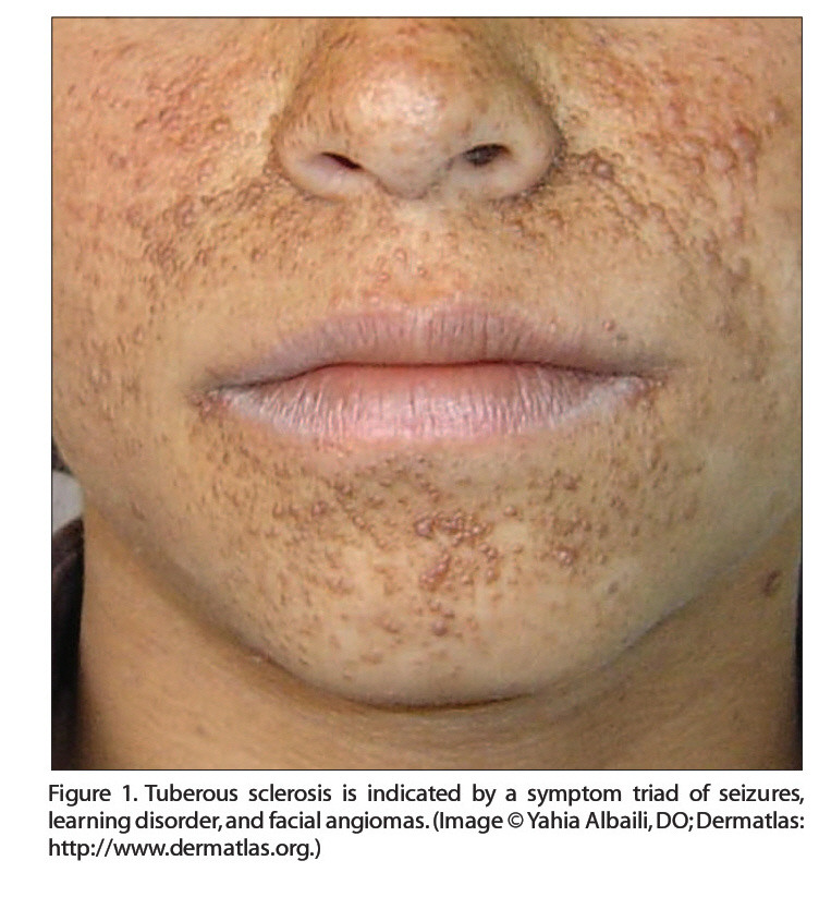 Figure 1. Tuberous sclerosis is indicated by a symptom triad of seizures, learning disorder,and facial angiomas. (Image ©Yahia Albaili, DO; Dermatlas: http://www.dermatlas.org.)