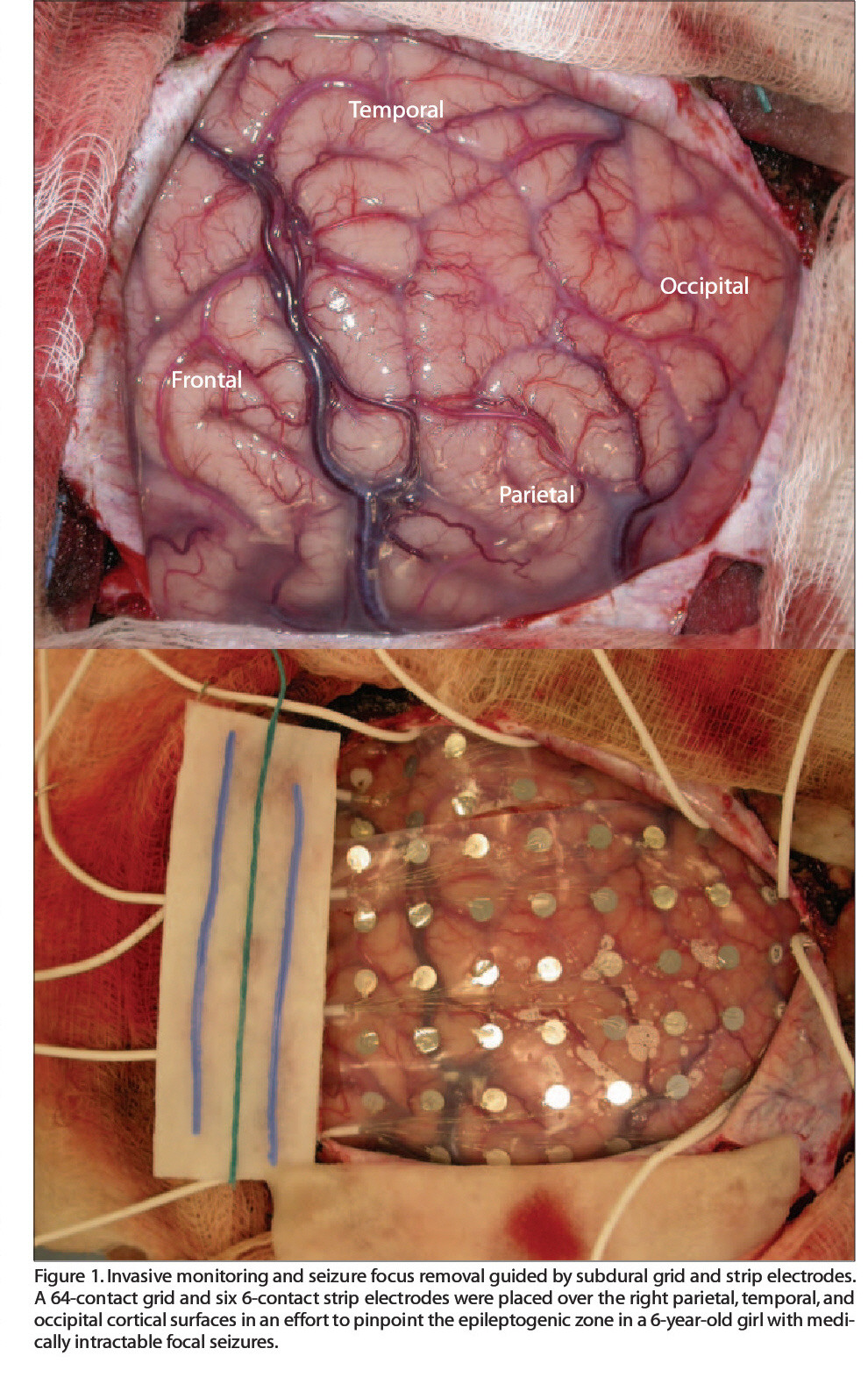Figure 1. Invasive monitoring and seizure focus removal guided by subdural grid and strip electrodes. A 64-contact grid and six 6-contact strip electrodes were placed over the right parietal, temporal, and occipital cortical surfaces in an effort to pinpoint the epileptogenic zone in a 6-year-old girl with medically intractable focal seizures.