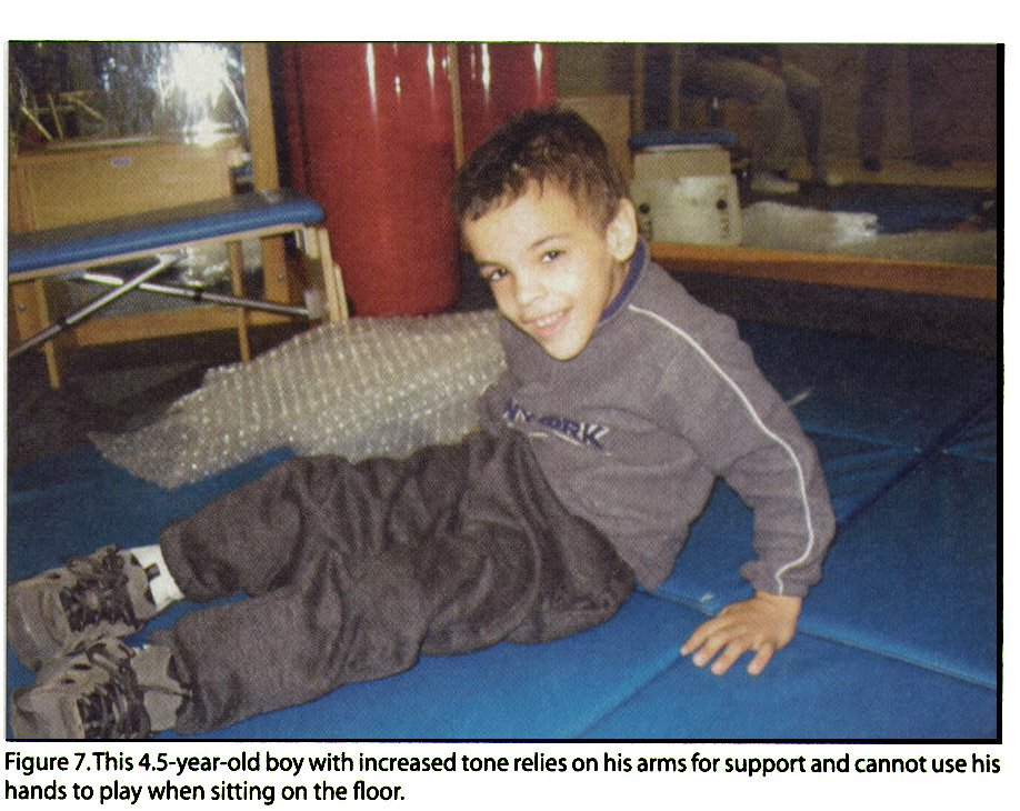 Figure 7.This 4.5-year-old boy with increased tone relies on his arms for support and cannot use his hands to play when sitting on the floor.