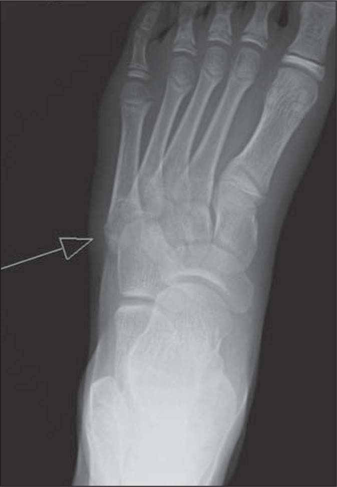 Avulsion Fracture at the Base of the Fifth Metatarsal.