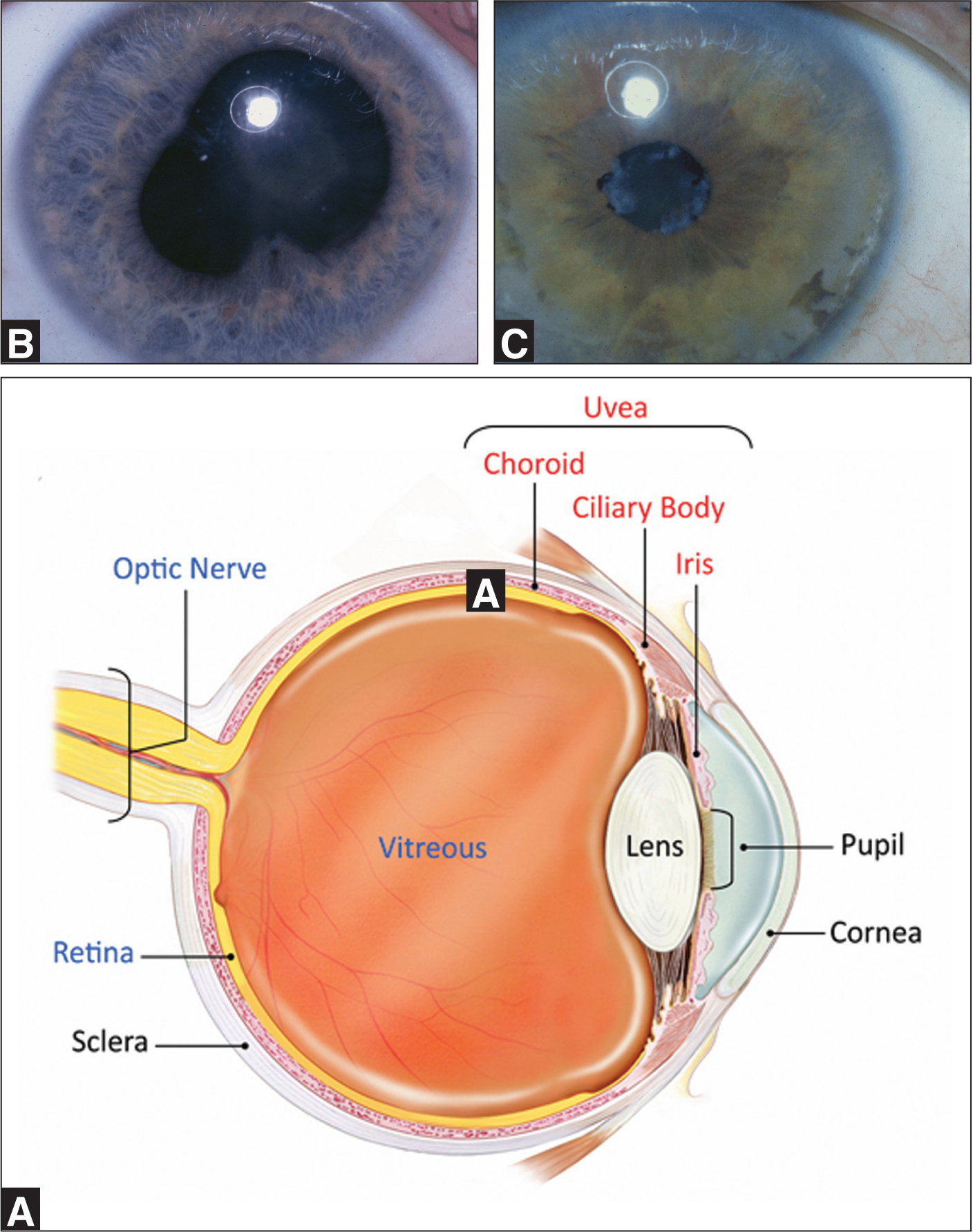 (A) Schematic of the eye. The uvea/anterior chamber is most often affected in juvenile idiopathic arthritis. Major complications of uveitis include (B) synechiae and (C) band keratopathy. It is a routine part of each pediatric rheumatology follow-up visit to check for these complications. Screening guidelines for uveitis in juvenile idiopathic arthritis have been put forth by the American Academy of Pediatrics.16Images courtesy of National Eye Institute, National Institutes of Health. Reprinted with permission.