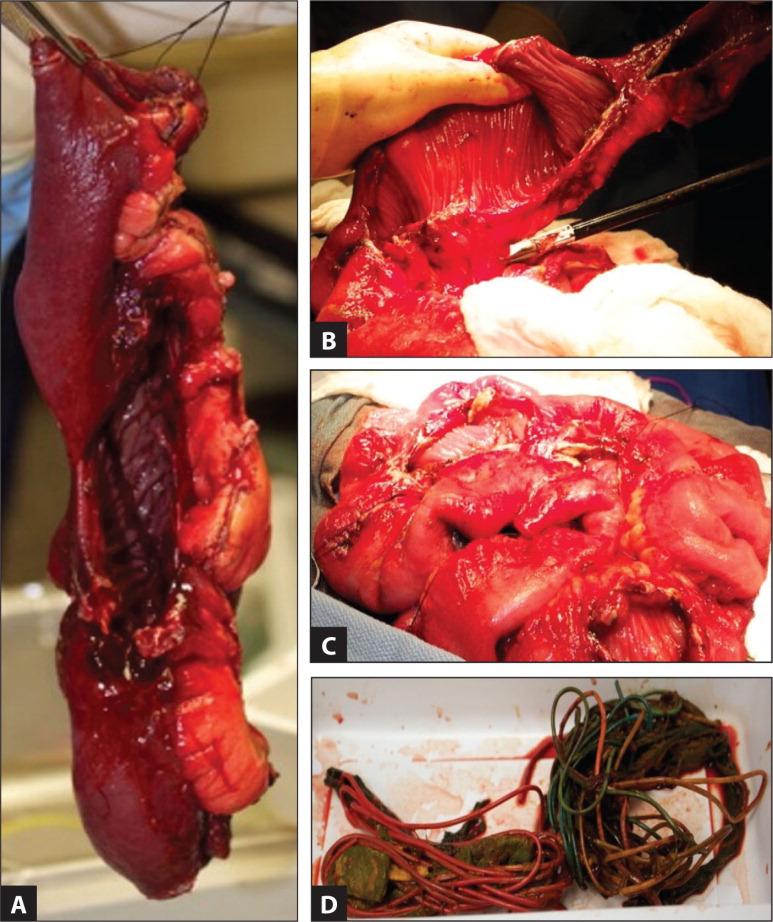 (A, B, C) Multiple perforations seen in the small bowel. (D) The resected pathological specimen contained a large synthetic bezoar composed of an aggregate of coiled cylindrical material consistent with wires. Wrapped with the wires are paper, cloth, rubber-like material, and foam.