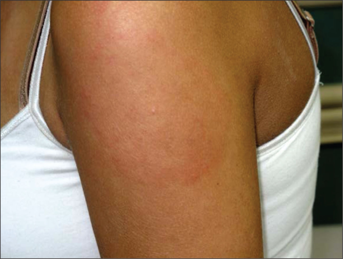 A rapidly spreading 10-cm, concentric, nonpruritic, round rash with raised maculopapular rash border, clearing around the punctum in a white, 16-year-old girl. The patient sustained a tick bite 12 days earlier. Despite amoxicillin therapy, the rash enlarged and the patient developed some systemic symptoms and arthralgias.