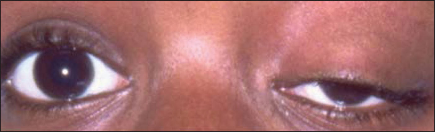 Ophthalmologic examination showing left eye ptosis.Images courtesy of Trupti Kale, MD. Reprinted with permission.