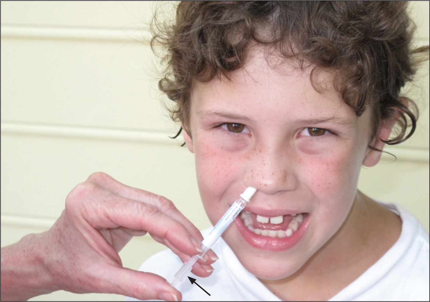 Young boy (not crying!) while receiving the intranasal live, attenuated influenza vaccination. Note the plastic stopper on the syringe plunger (see arrow), which allows the delivery of first one-half of the dose to one nostril.