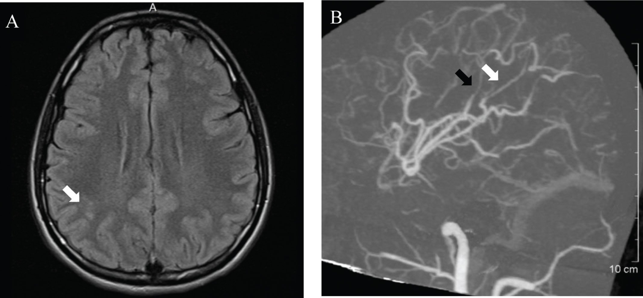 Brain imaging consistent with small vessel vasculitis. (A) Magnetic resonance imaging with ischemic demyelination in middle cerebral artery watershed zone (white arrow). (B) Computed tomography angiography demonstrates multiple vessels that show abnormal narrowing (black arrow) and irregularity (white arrow).