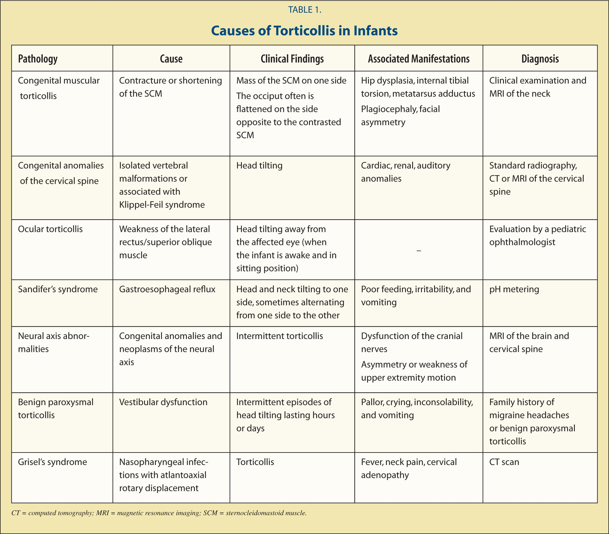 Causes of Torticollis in Infants
