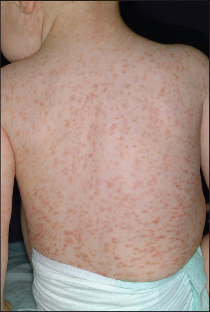 Tan-pink macules and papules on the trunk, neck, and proximal extremities of a patient with urticaria pigmentosa.