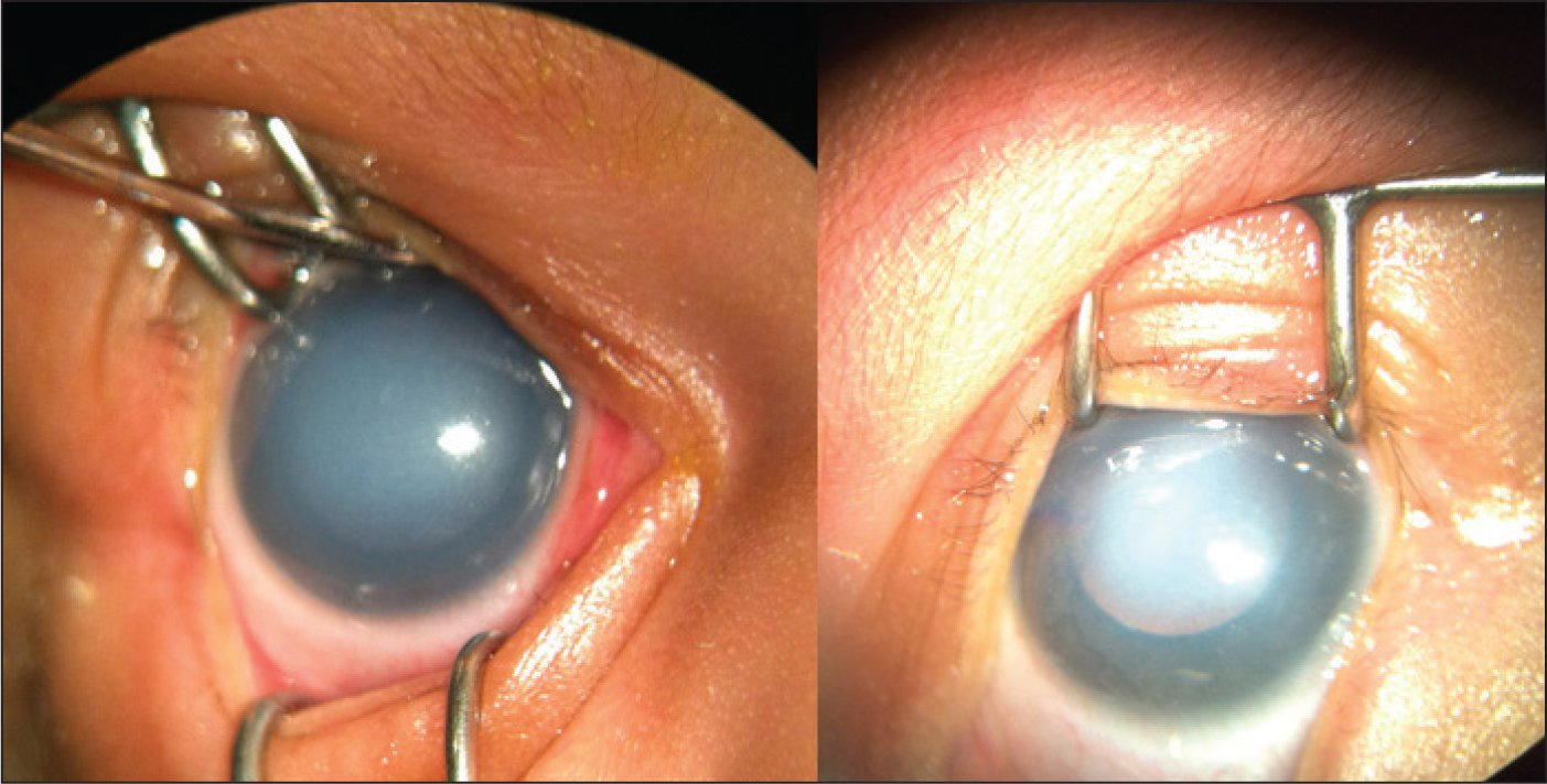 Corneal opacities at birth.Images courtesy of Hitesh Agrawal, MD.