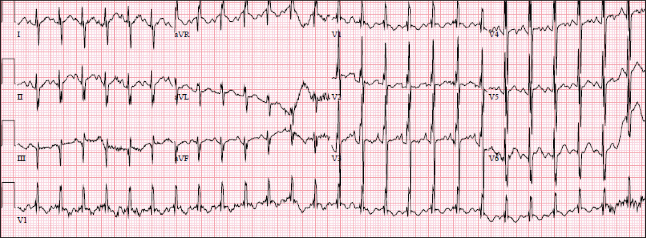 Electrocardiogram demonstrating sinus tachycardia, right superior axis (axis >180°), and right ventricular hypertrophy.