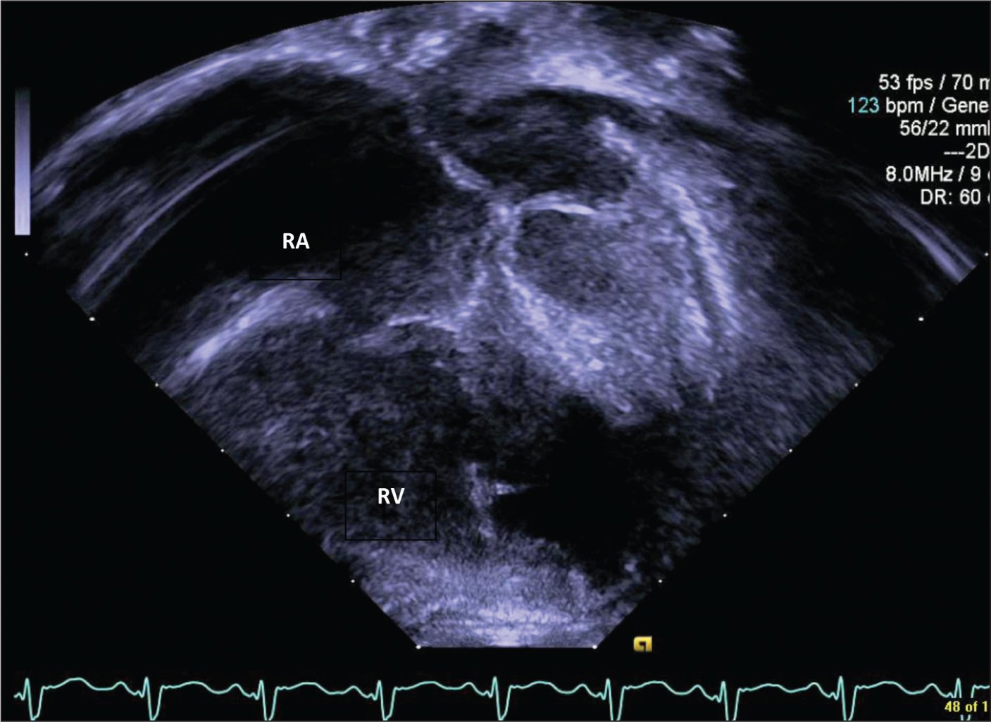 Echocardiogram: Apical four-chamber view demonstrating moderate right atrial enlargement and right ventricular dilation.