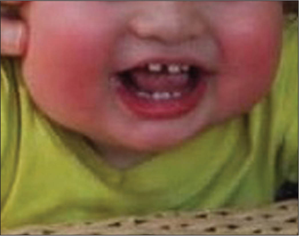 The patient at age 20 months, prior to surgery. Note the chubby cheeks and facial plethora.