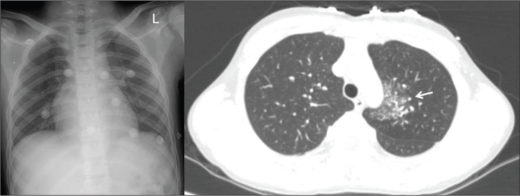 (A) Chest radiograph is clear. Note the eight external monitor leads on the chest. (B) Chest computed tomography scan shows dense consolidations (arrow) in the left lung.