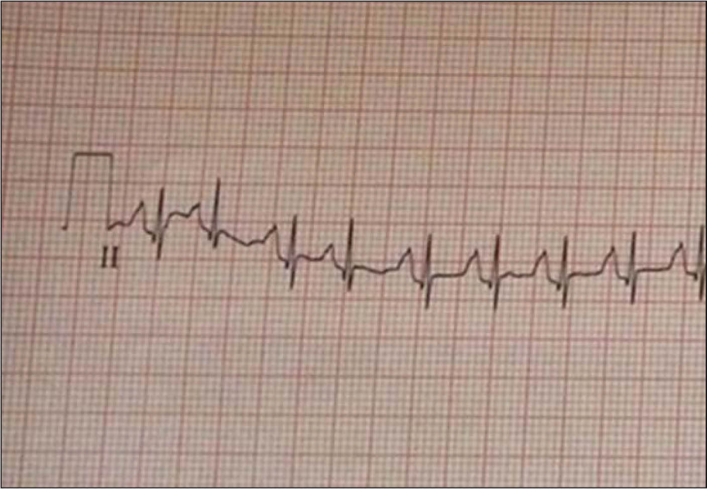 An electrocardiogram status-post direct current cardioversion (normal sinus rhythm). Ventricular rate is approximately 165 beats per minute.