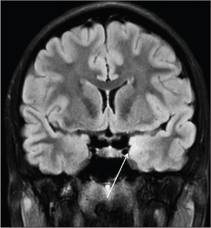 Magnetic resonance imaging scan of the brain (coronal section) demonstrating a subtle signal abnormality along the medial temporal lobe.