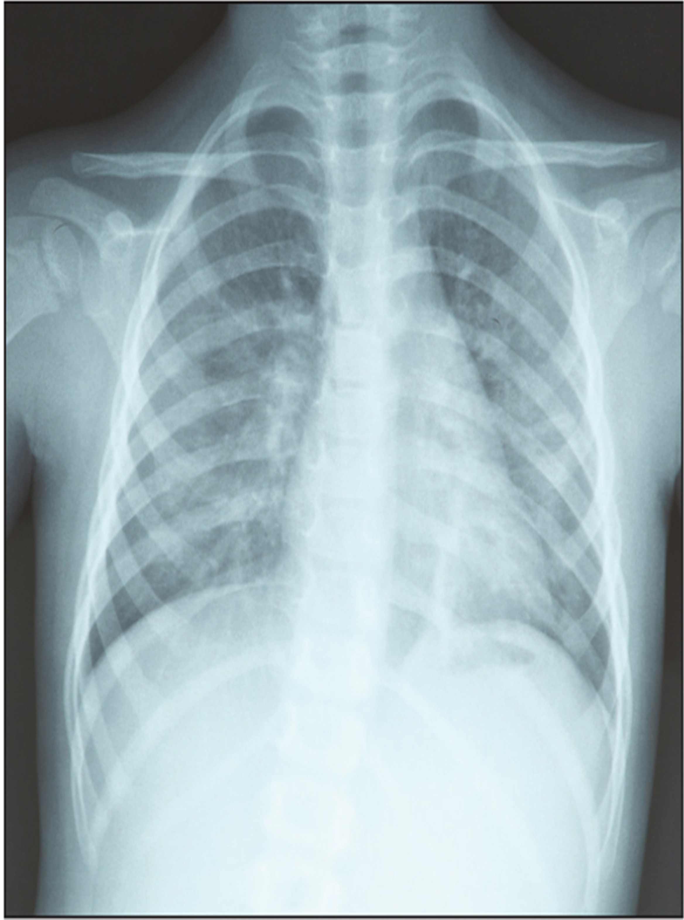 A chest X-ray of a child.© Shutterstock