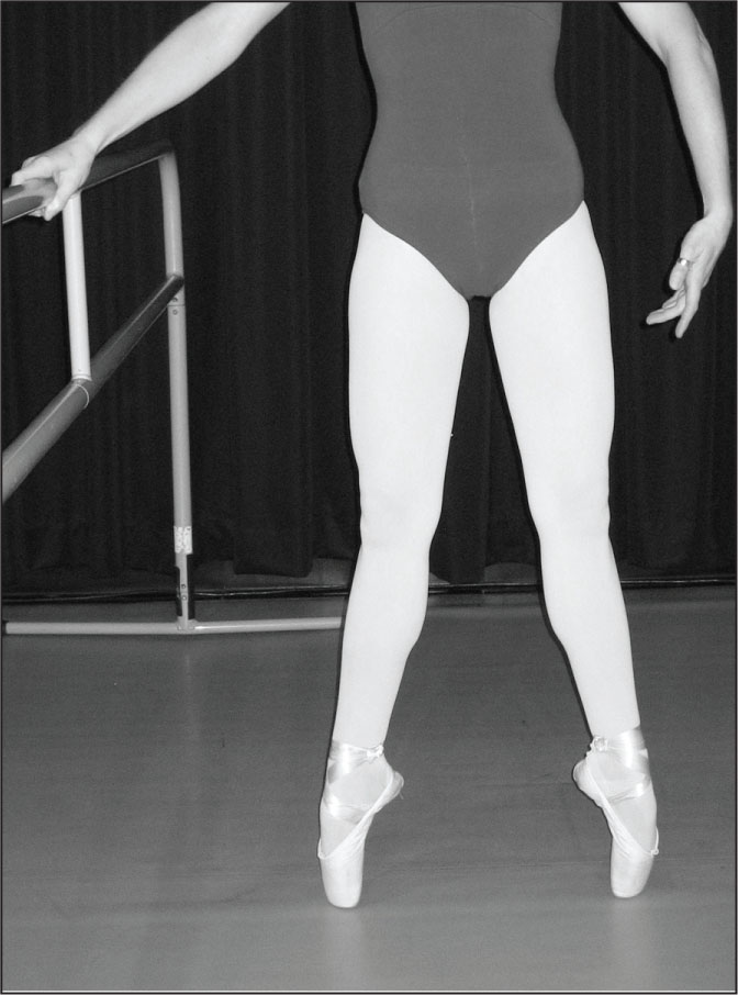Dancer demonstrating pointe. Courtesy of Jeffrey A. Russell, PhD, AT, Assistant Professor of Athletic Training, and Director, Science and Health in Artistic Performance (SHAPe), Ohio University.