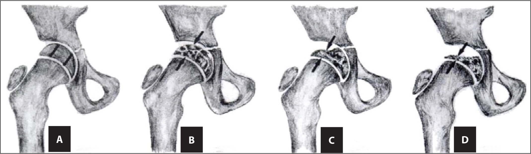 Herring classification of the femoral head. (A) Normal femoral head. (B) Group A: no loss of height. (C) Group B: between 0% and 50% loss of height. (D) More than 50% loss of height. Reprinted with permission from Farsetti et al.11
