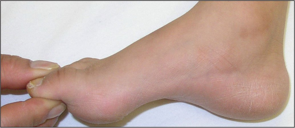 Clinical image of a cavus foot.