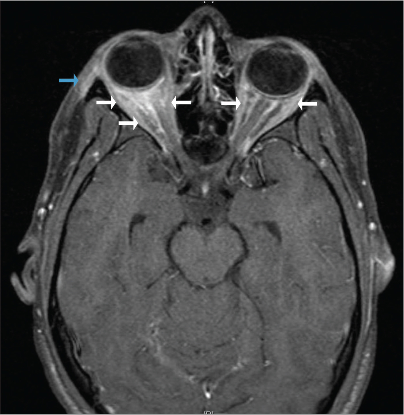 Transverse view of gadolinium-enhanced, fat-saturated magnetic resonance image of orbits showing mild right-sided proptosis, right preseptal soft tissue enhancement (blue arrow), and bilateral enhancement of the retrobulbar fat (white arrows) (greater on the right side than on the left).
