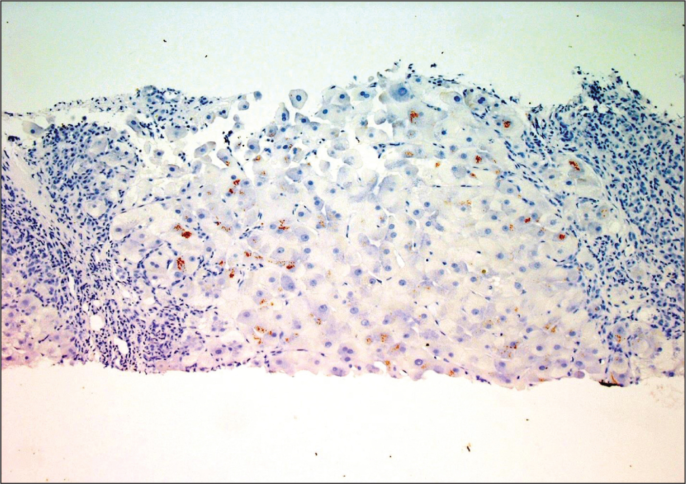 A copper stain of a liver biopsy in Wilson's disease, highlighted as red-brown granules within the hepatocytes. Original image courtesy of Dr. John Hart (Department of Pathology, The University of Chicago Medicine), reprinted with permission.