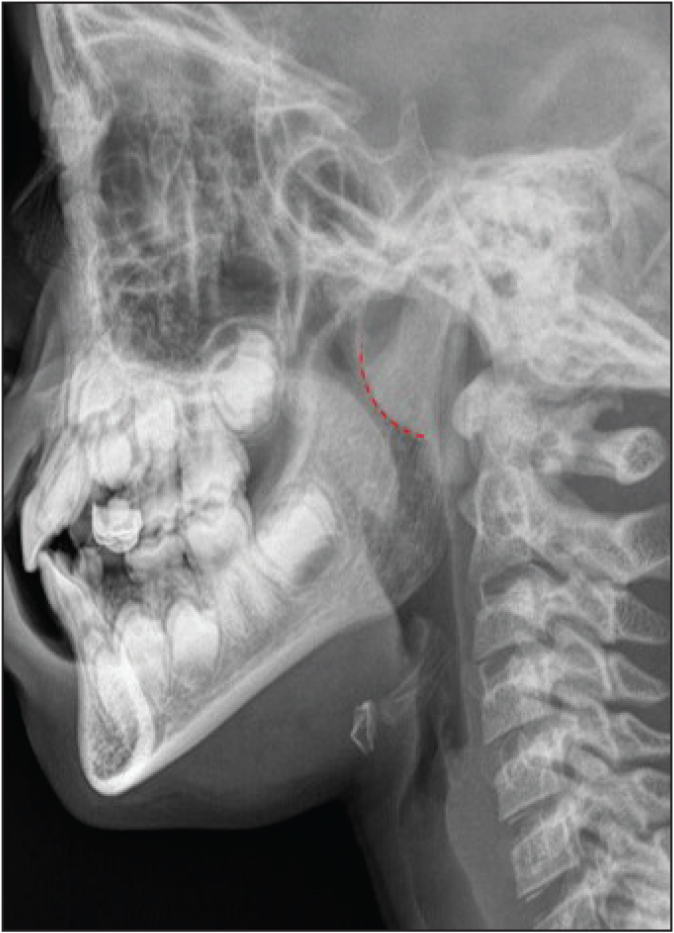 Adenoid hypertrophy. Lateral neck X-ray demonstrating adenoid hypertrophy (outlined by red line) causing narrowing of the adjacent airway in the nasopharynx.