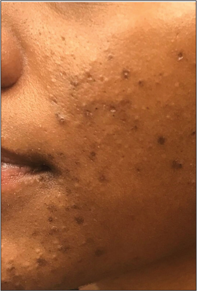 Moderate acne. Several papules and pustules, one to two nodules, and few to many comedones.