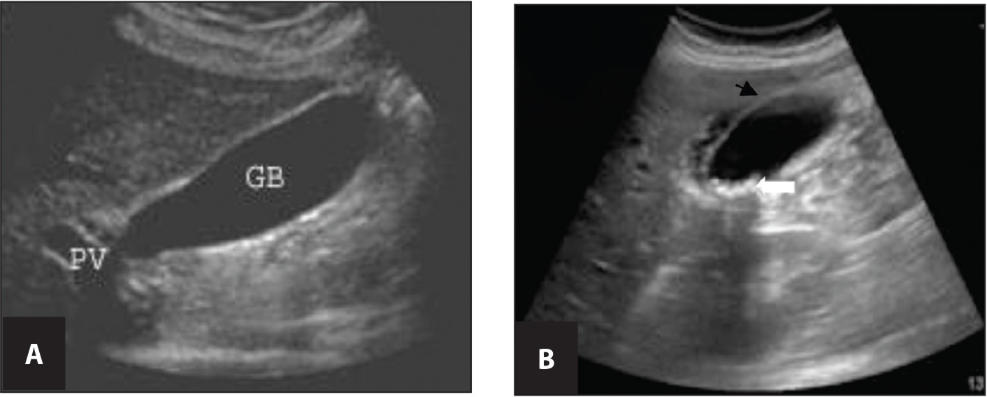 (A) Normal gallbladder versus (B) cholecystitis. Panel A shows normal gallbladder anatomy as labeled. On Panel B, see the white arrow pointing to multiple small stones in the gallbladder and the shadow cast down posterior to it. The black arrow shows where there is pericholecystic fluid. GB, gallbladder; PV, portal vein.