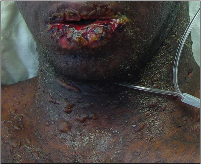 Toxic epidermal necrolysis. Bullae with epidermal detachment and marked mucosal involvement.