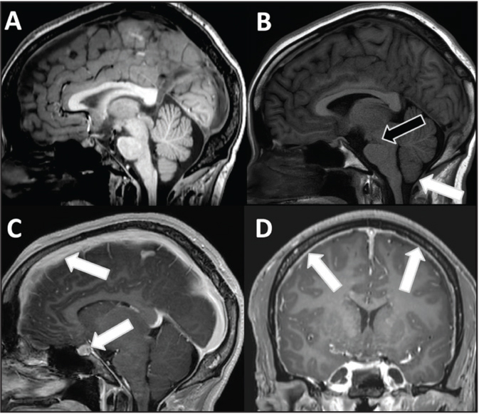 Magnetic resonance imaging (MRI) findings in an 18-year-old male with leukemia, trauma, and subsequent intracranial hypotension. (A) Normal appearance of the brain structures on the initial MRI sagittal T1. (B) After the patient experienced a trauma, he developed a low-pressure headache, and the MRI sagittal T1-weighted image shows descent of the cerebellar tonsils relative to the foramen magnum (white arrow) and compression of the interpeduncular fossa (black arrow). (C) Postcontrast sagittal T1-weighted image shows diffuse venous engorgement involving the superior sagittal sinus and pituitary gland (white arrows), as well as (D) diffuse dural thickening and enhancement (ie, pachymeningitis) (arrows).