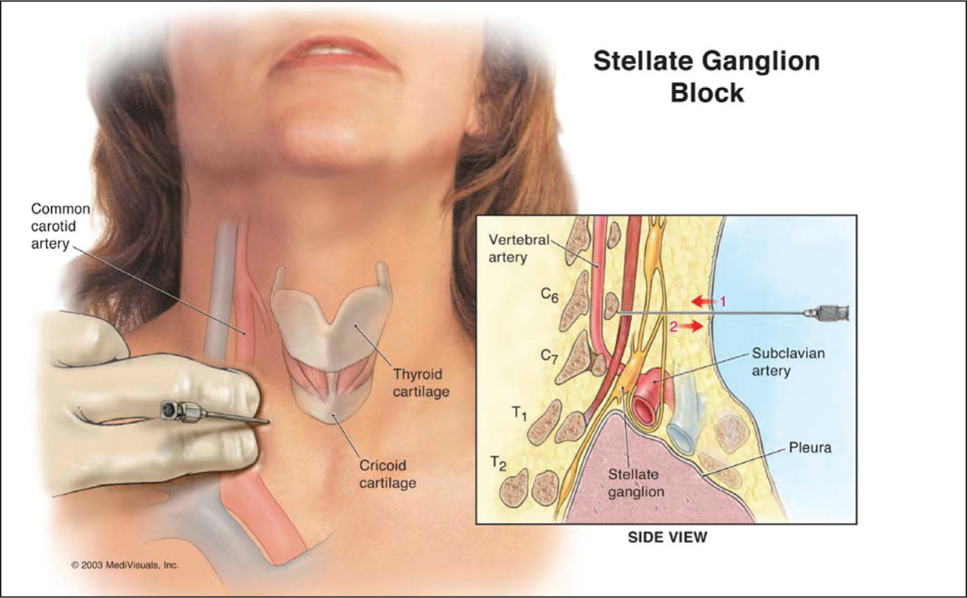 Stellate ganglion block technique.Image courtesy of Maryam Navaie, DrPH. Reprinted with permission.
